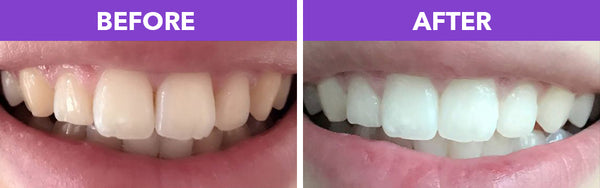crystal smile teeth whitening home kit instructions