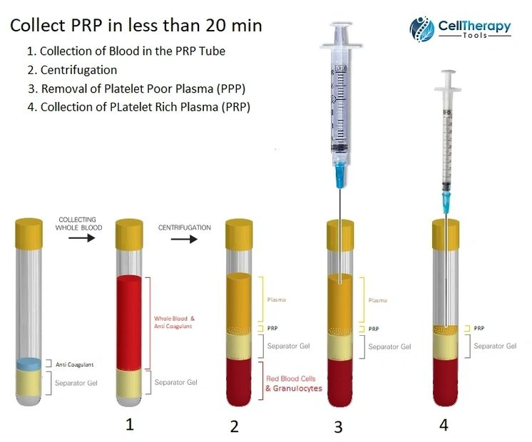 prp therapy precare instructions